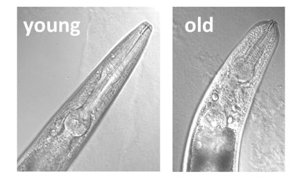 Here we can see the loss of connective tissue (ECM) during aging in C. elegans.